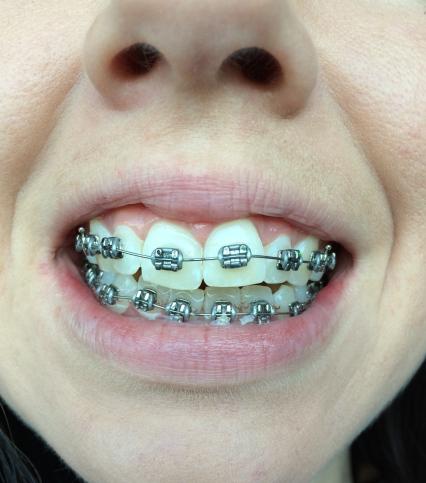 braces-day-2