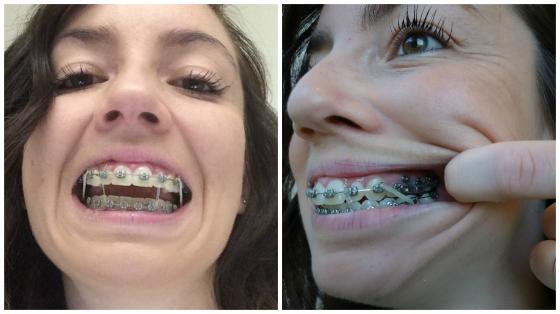 braces-elastics-tpa-tads