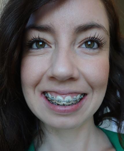 braces-month-22