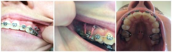 braces-tads-tpa